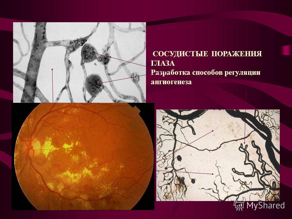 СОСУДИСТЫЕ ПОРАЖЕНИЯ ГЛАЗА Разработка способов регуляции ангиогенеза Неперфузируемые области сетчатки