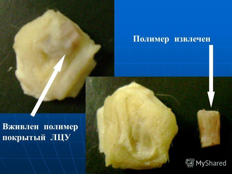 Вживлен полимер покрытый ЛЦУ Полимер извлечен