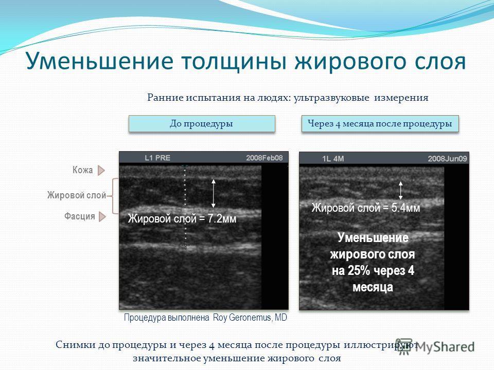 Уменьшение толщины жирового слоя До процедуры Через 4 месяца после процедуры Процедура выполнена Roy Geronemus, MD Жировой слой = 7.2мм Жировой слой = 5.4мм Уменьшение жирового слоя на 25% через 4 месяца Кожа Жировой слой Фасция Ранние испытания на л