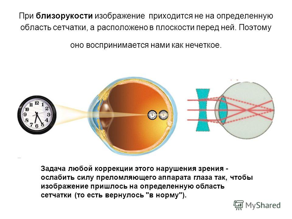 При близорукости изображение приходится не на определенную область сетчатки, а расположено в плоскости перед ней. Поэтому оно воспринимается нами как нечеткое. Задача любой коррекции этого нарушения зрения - ослабить силу преломляющего аппарата глаза
