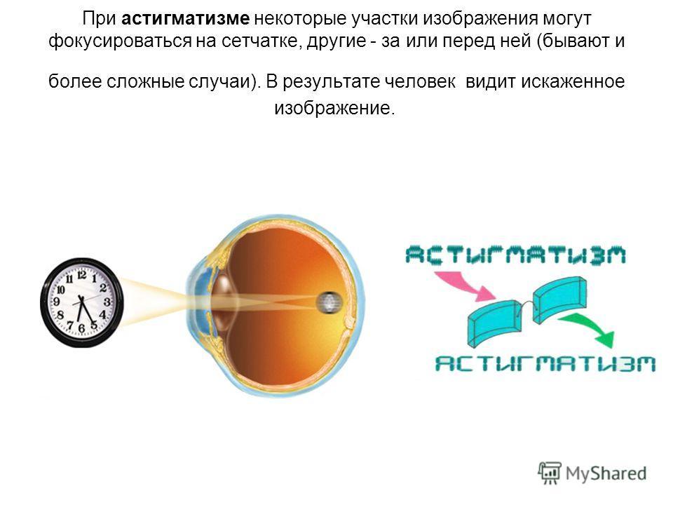 При астигматизме некоторые участки изображения могут фокусироваться на сетчатке, другие - за или перед ней (бывают и более сложные случаи). В результате человек видит искаженное изображение.