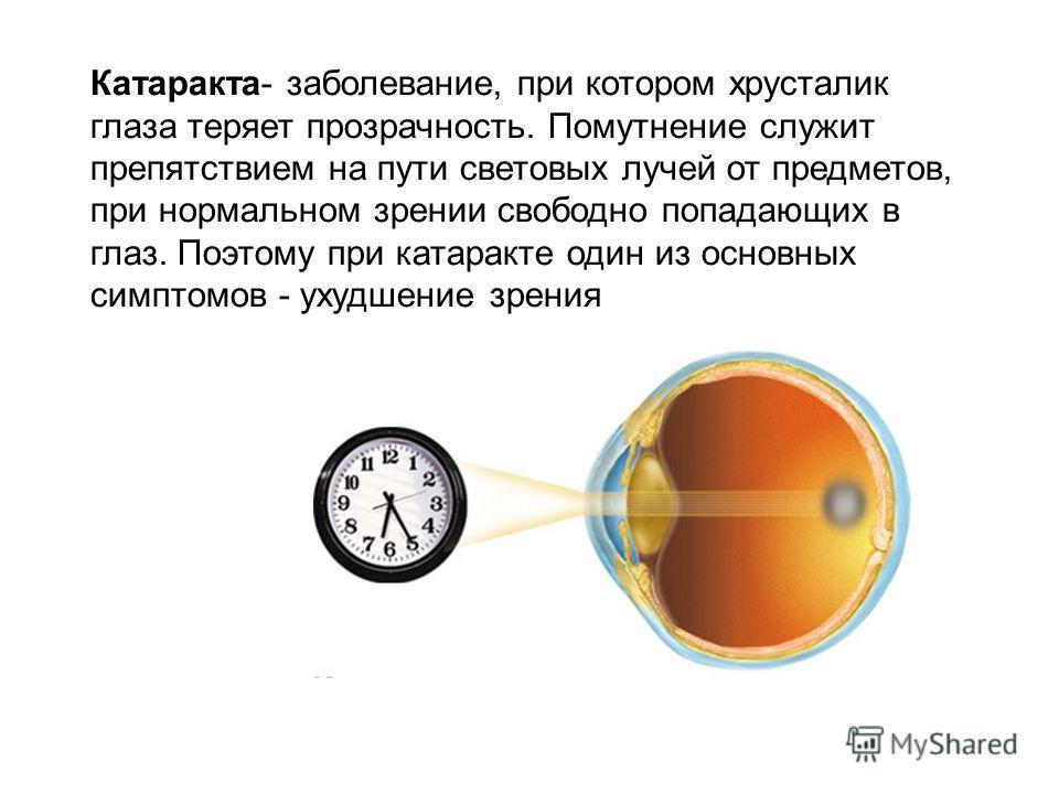 Катаракта- заболевание, при котором хрусталик глаза теряет прозрачность. Помутнение служит препятствием на пути световых лучей от предметов, при нормальном зрении свободно попадающих в глаз. Поэтому при катаракте один из основных симптомов - ухудшени