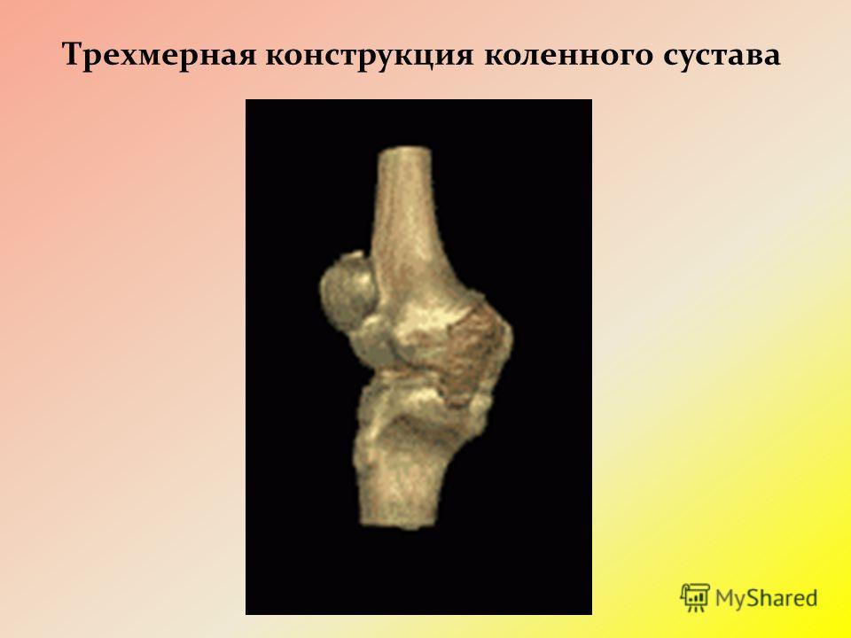 Трехмерная конструкция коленного сустава