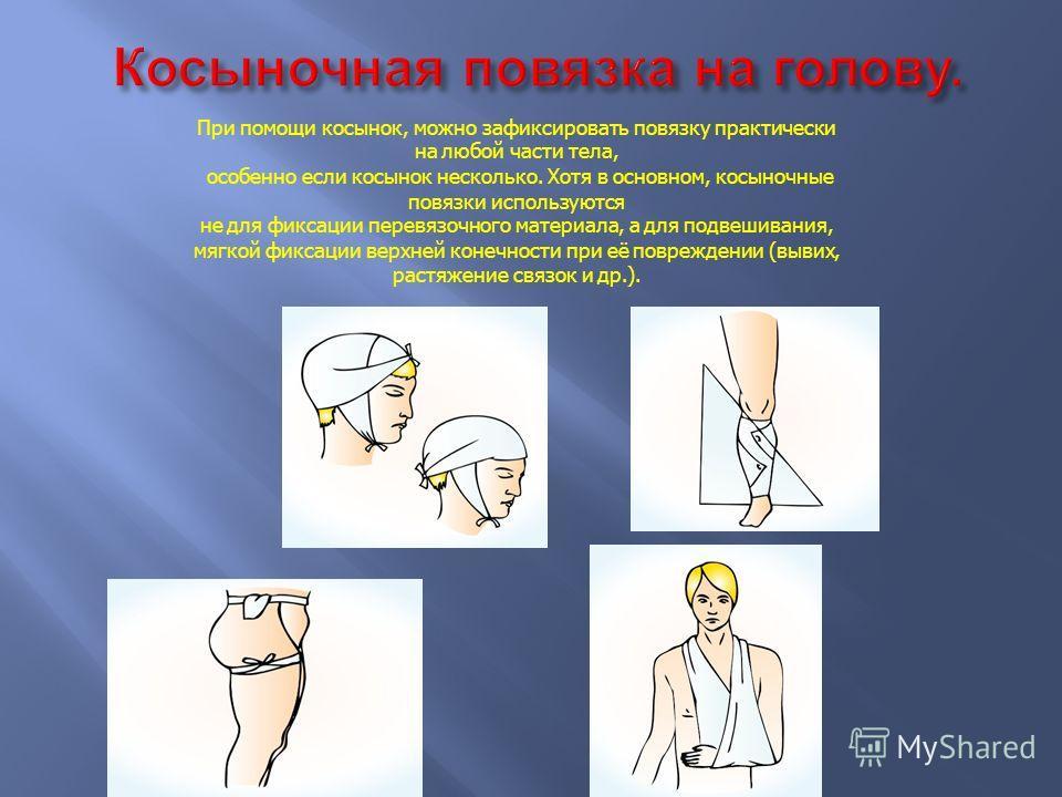 Давящая повязка, в целом отличается от любой другой повязки только тугим бинтованием перевязочного материала к поверхности раны