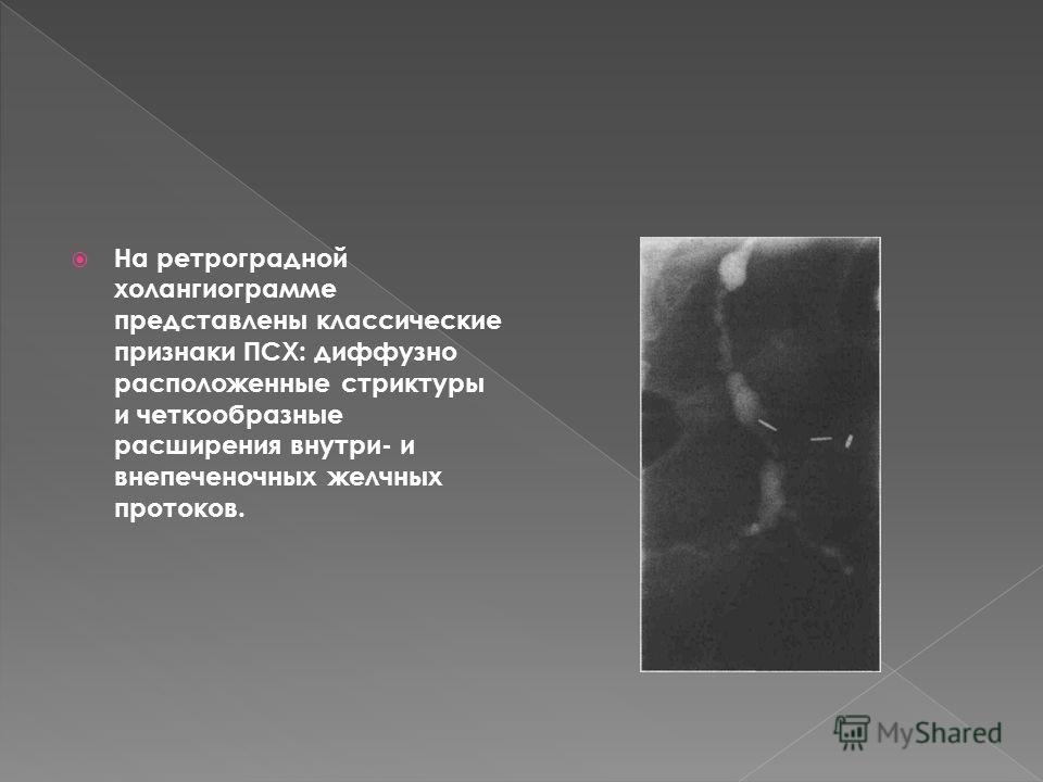 На ретроградной холангиограмме представлены классические признаки ПСХ: диффузно расположенные стриктуры и четкообразные расширения внутри- и внепеченочных желчных протоков.