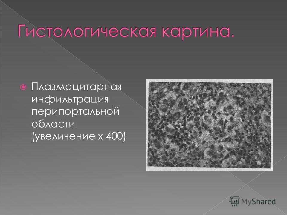 Плазмацитарная инфильтрация перипортальной области (увеличение х 400)