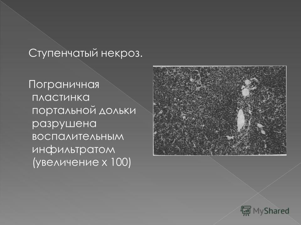 Ступенчатый некроз. Пограничная пластинка портальной дольки разрушена воспалительным инфильтратом (увеличение х 100)