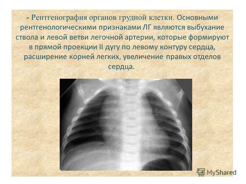- Рентгенография органов грудной клетки. Основными рентгенологическими признаками ЛГ являются выбухание ствола и левой ветви легочной артерии, которые формируют в прямой проекции II дугу по левому контуру сердца, расширение корней легких, увеличение
