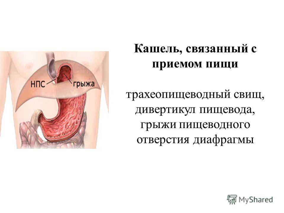 Кашель, связанный с приемом пищи трахеопищеводный свищ, дивертикул пищевода, грыжи пищеводного отверстия диафрагмы