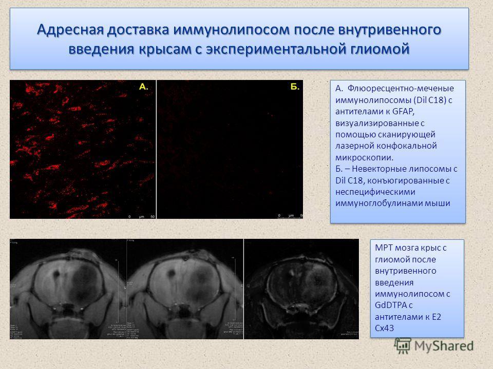 Адресная доставка иммунолипосом после внутривенного введения крысам с экспериментальной глиомой А. Флюоресцентно-меченые иммунолипосомы (Dil C18) с антителами к GFAP, визуализированные с помощью сканирующей лазерной конфокальной микроскопии. Б. – Нев