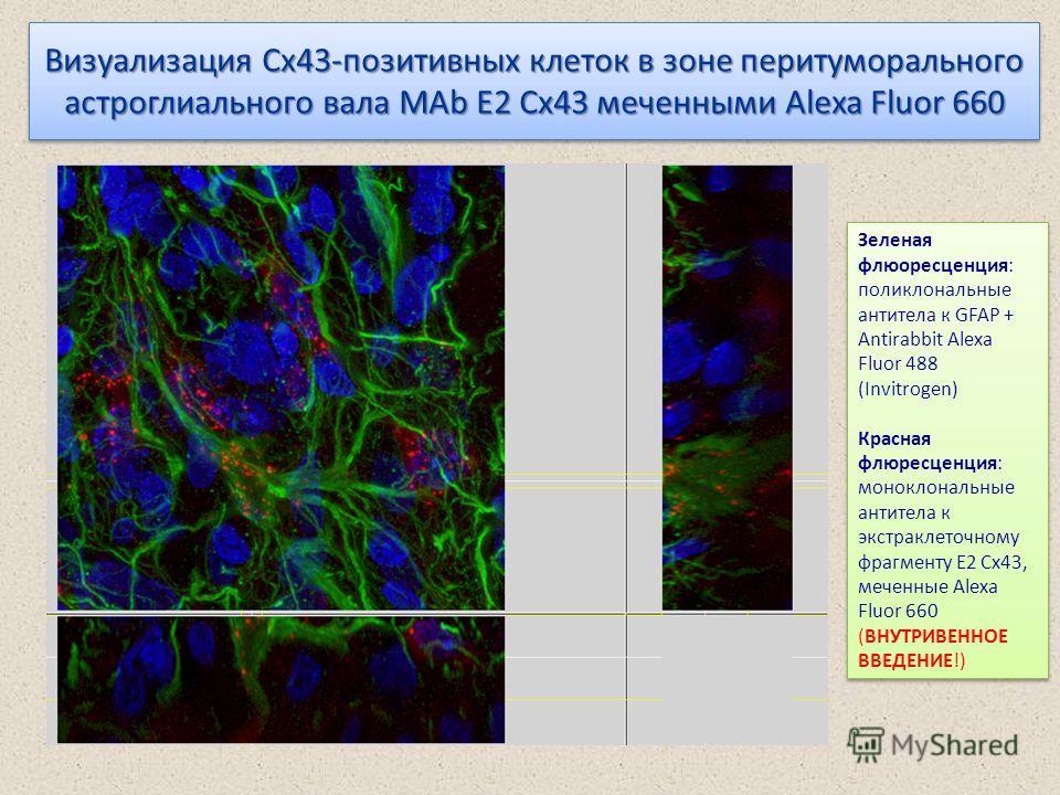 Визуализация Cx43-позитивных клеток в зоне перитуморального астроглиального вала MAb E2 Cx43 меченными Alexa Fluor 660 Зеленая флюоресценция: поликлональные антитела к GFAP + Antirabbit Alexa Fluor 488 (Invitrogen) Красная флюресценция: моноклональны