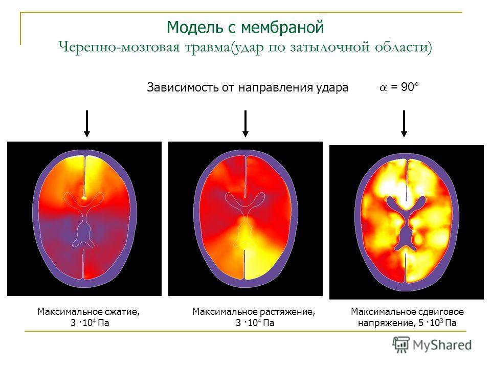 Модель с мембраной Черепно-мозговая травма(удар по затылочной области) Зависимость от направления удара = 90° Максимальное сжатие, 3 ·10 4 Па Максимальное растяжение, 3 ·10 4 Па Максимальное сдвиговое напряжение, 5 ·10 3 Па