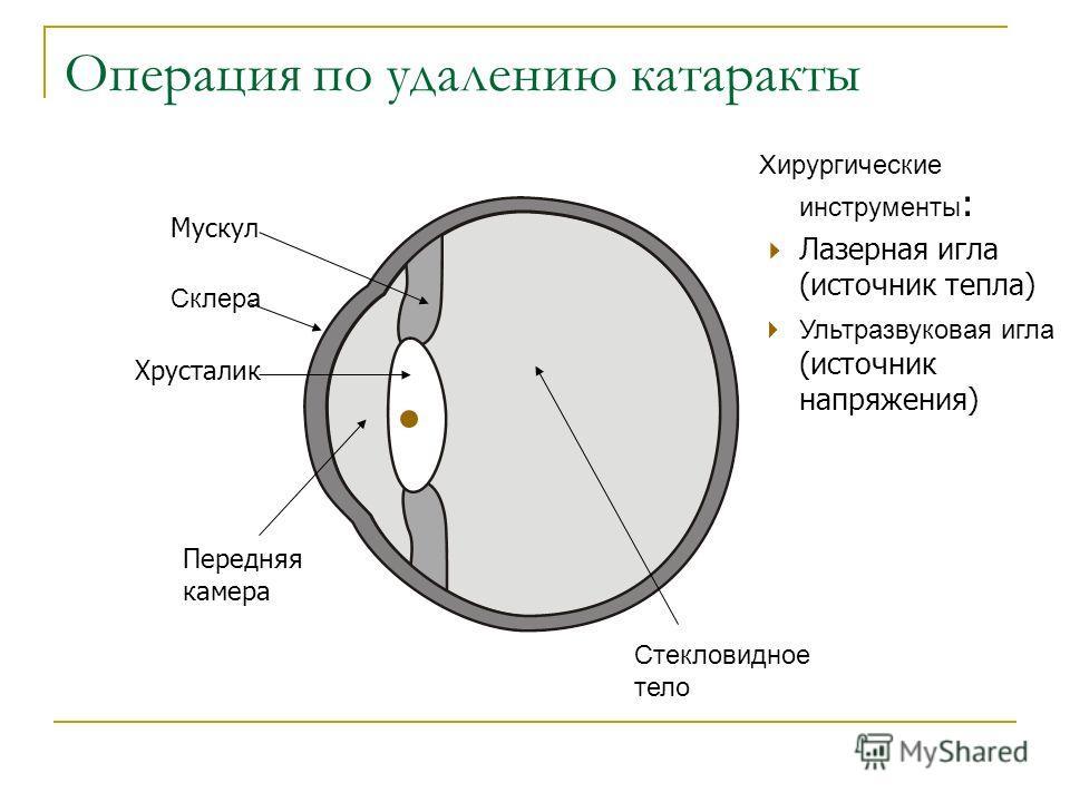 Операция по удалению катаракты Склера Стекловидное тело Мускул Хрусталик Передняя камера Хирургические инструменты : Лазерная игла (источник тепла) Ультразвуковая игла (источник напряжения)