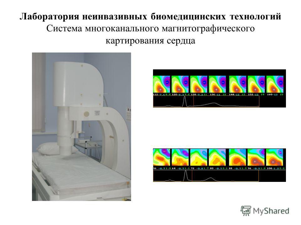 Лаборатория неинвазивных биомедицинских технологий Система многоканального магнитографического картирования сердца