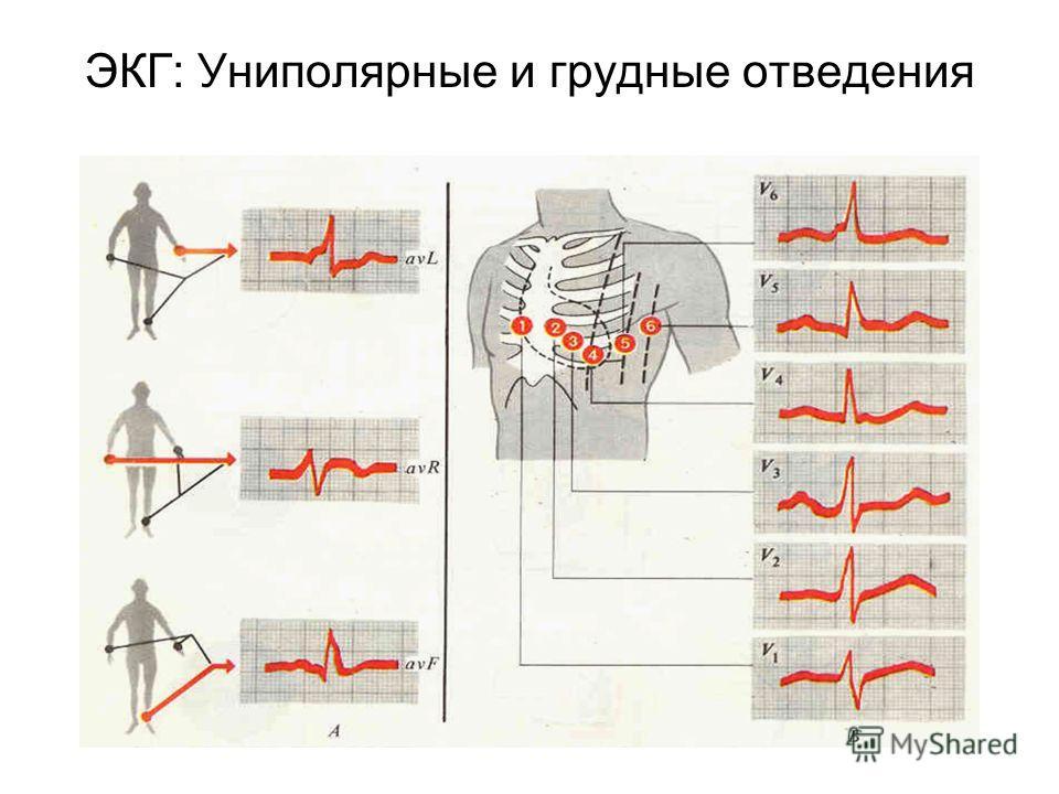 ЭКГ: Униполярные и грудные отведения