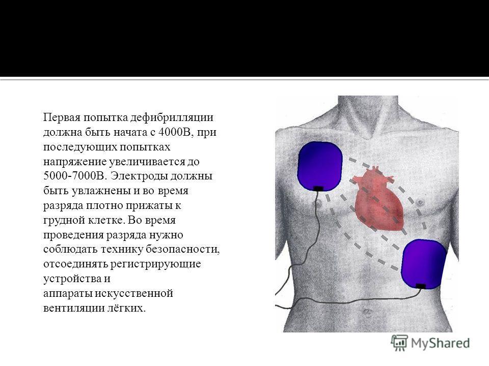 Первая попытка дефибрилляции должна быть начата с 4000В, при последующих попытках напряжение увеличивается до 5000-7000В. Электроды должны быть увлажнены и во время разряда плотно прижаты к грудной клетке. Во время проведения разряда нужно соблюдать