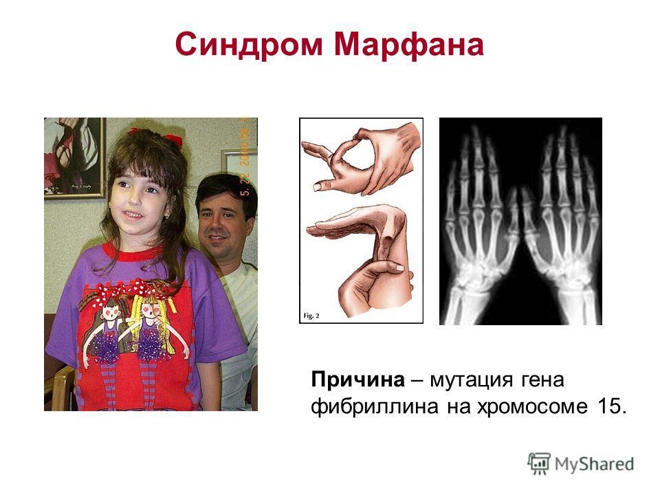 Синдром Марфана Причина – мутация гена фибриллина на хромосоме 15.