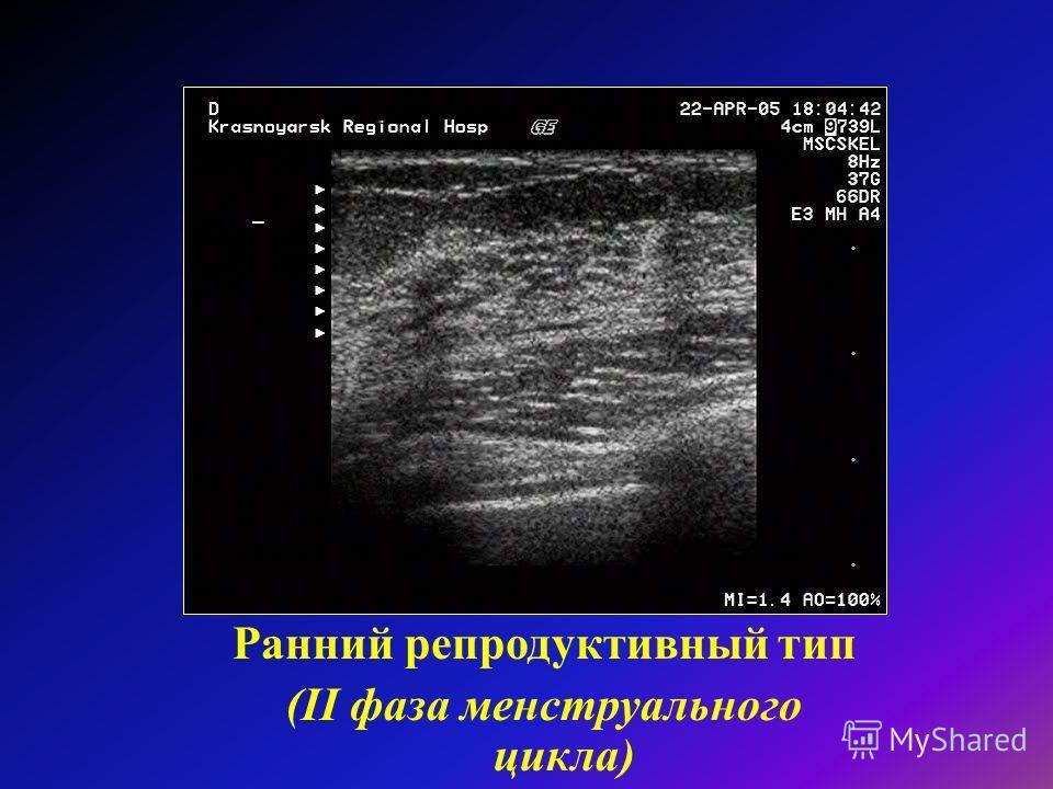 """Презентация на тему: """"Тема: Ультразвуковая анатомия молочной железы. Ультразвуковая диагностика заболеваний молочной железы Лекц"""