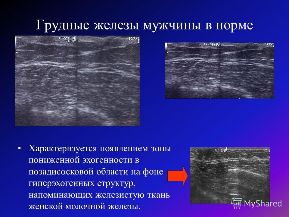Грудные железы мужчины в норме Характеризуется появлением зоны пониженной эхогенности в позадисосковой области на фоне гиперэхогенных структур, напоминающих железистую ткань женской молочной железы.