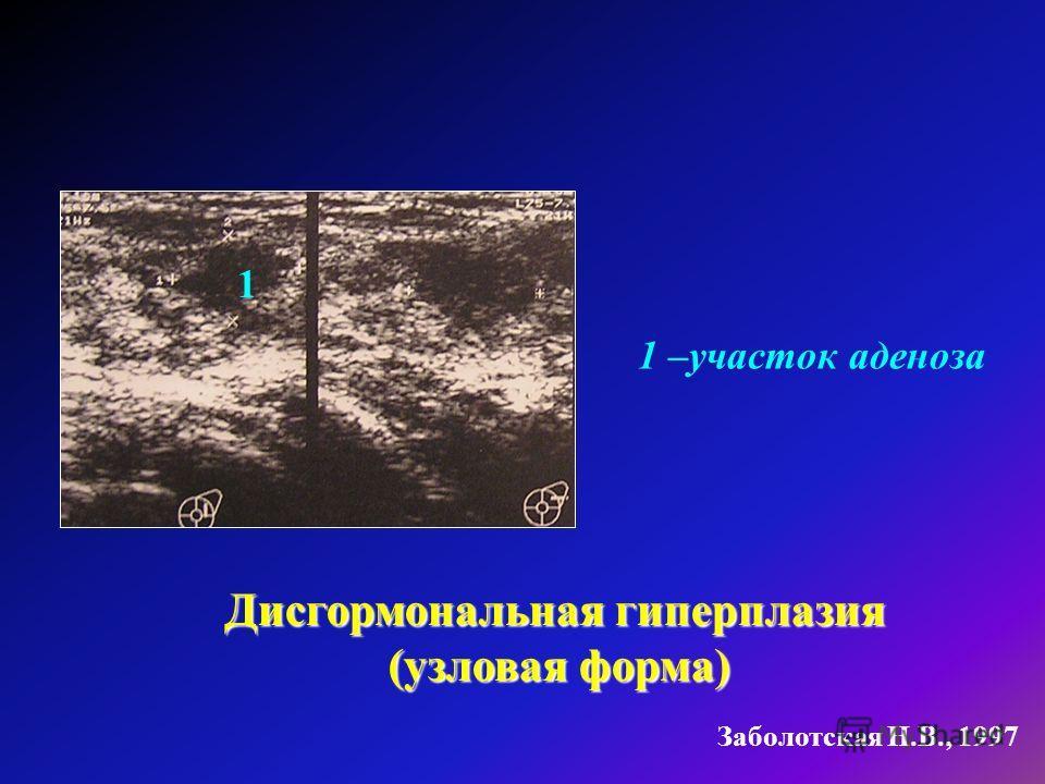 Заболотская Н.В., 1997 1 –участок аденоза Дисгормональная гиперплазия (узловая форма) 1