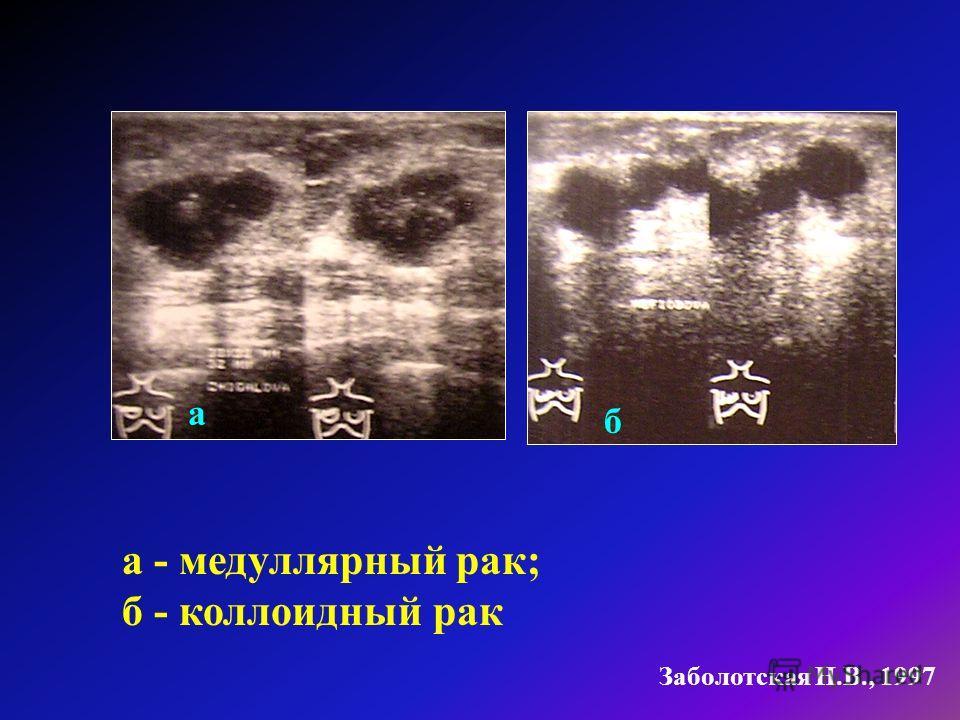а - медуллярный рак; б - коллоидный рак Заболотская Н.В., 1997 а б