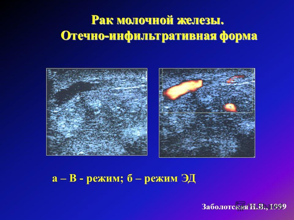 а – В - режим; б – режим ЭД Рак молочной железы. Отечно-инфильтративная форма Отечно-инфильтративная форма Заболотская Н.В., 1999