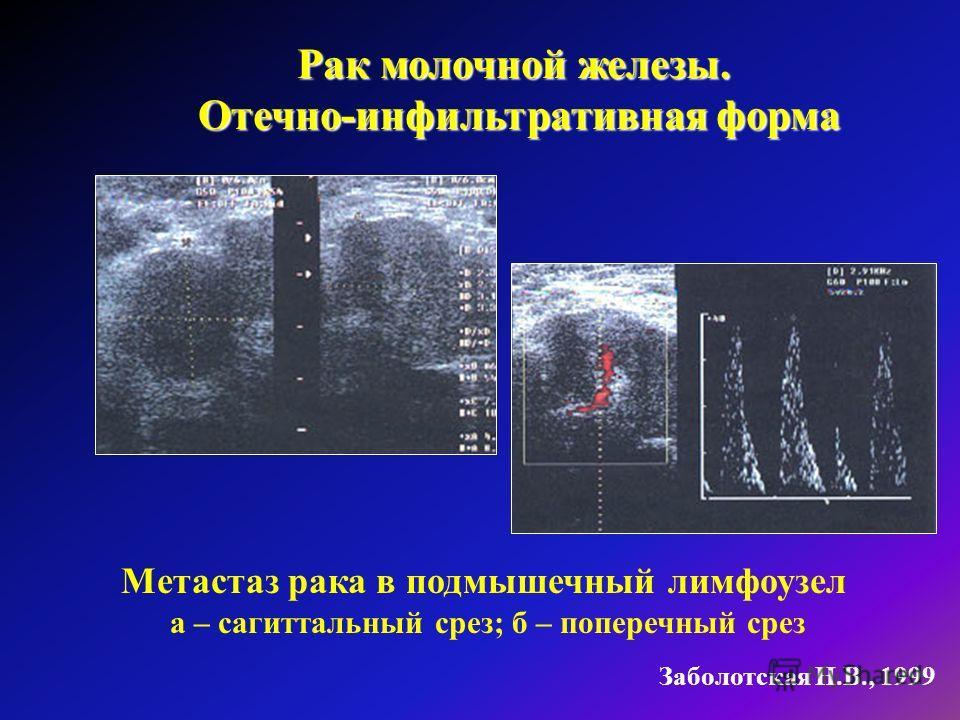 Рак молочной железы. Отечно-инфильтративная форма Отечно-инфильтративная форма Заболотская Н.В., 1999 Метастаз рака в подмышечный лимфоузел а – сагиттальный срез; б – поперечный срез