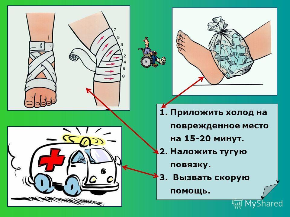 1.Приложить холод на поврежденное место на 15-20 минут. 2.Наложить тугую повязку. 3. Вызвать скорую помощь.