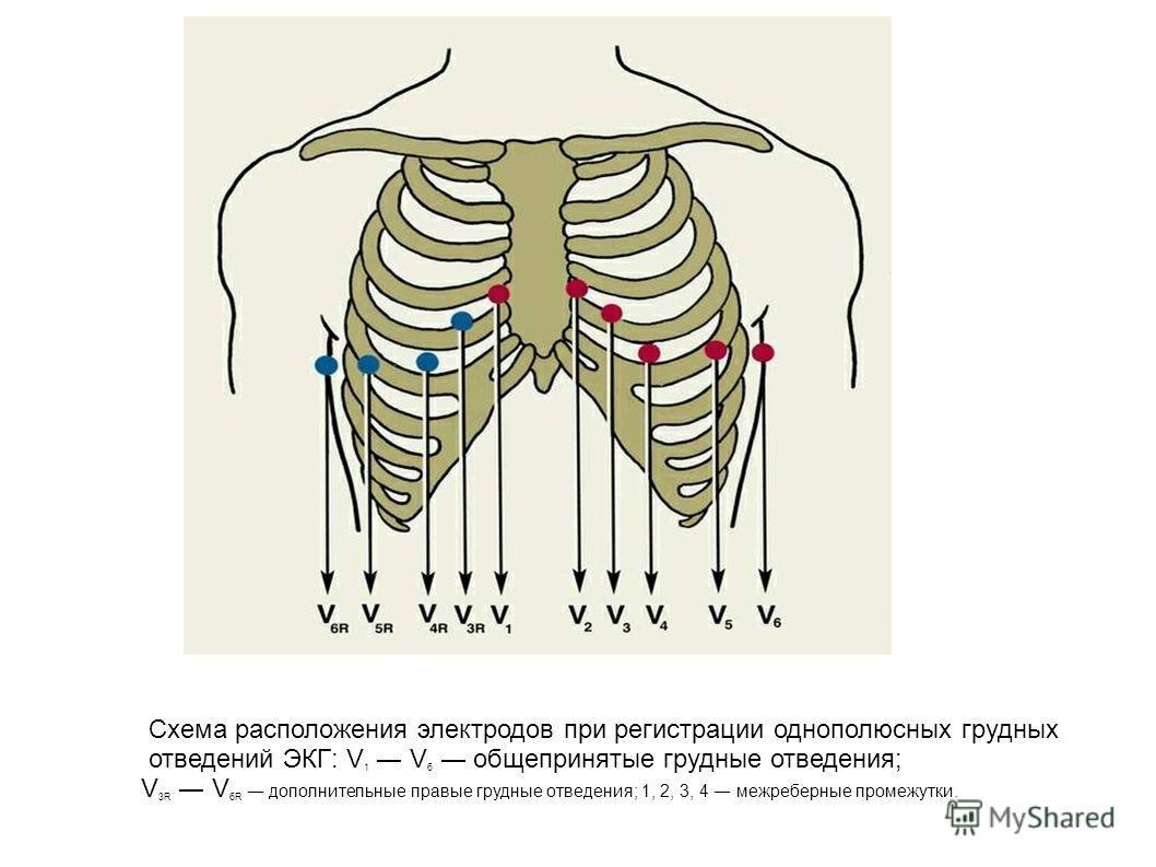 Схема расположения электродов при регистрации однополюсных грудных отведений ЭКГ: V 1 V 6 общепринятые грудные отведения; V 3R V 6R дополнительные правые грудные отведения; 1, 2, 3, 4 межреберные промежутки.