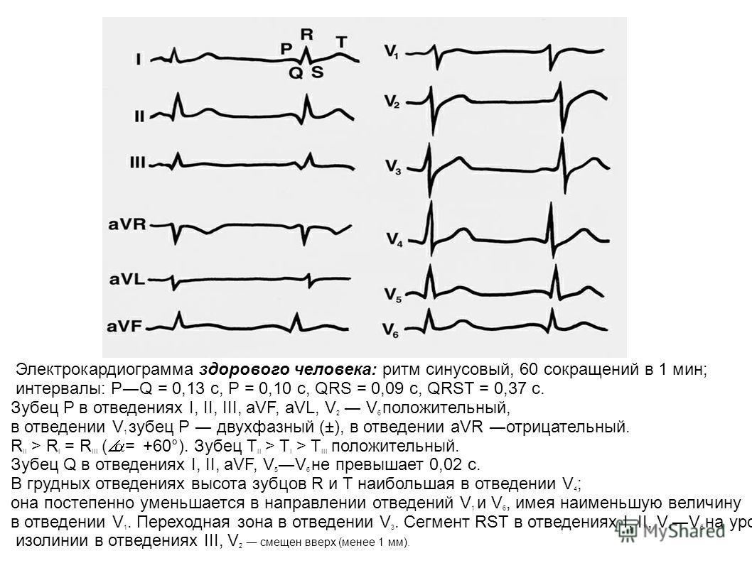 Электрокардиограмма здорового человека: ритм синусовый, 60 сокращений в 1 мин; интервалы: РQ = 0,13 с, Р = 0,10 с, QRS = 0,09 с, QRST = 0,37 с. Зубец Р в отведениях I, II, III, aVF, aVL, V 2 V 6 положительный, в отведении V 1 зубец Р двухфазный (±),