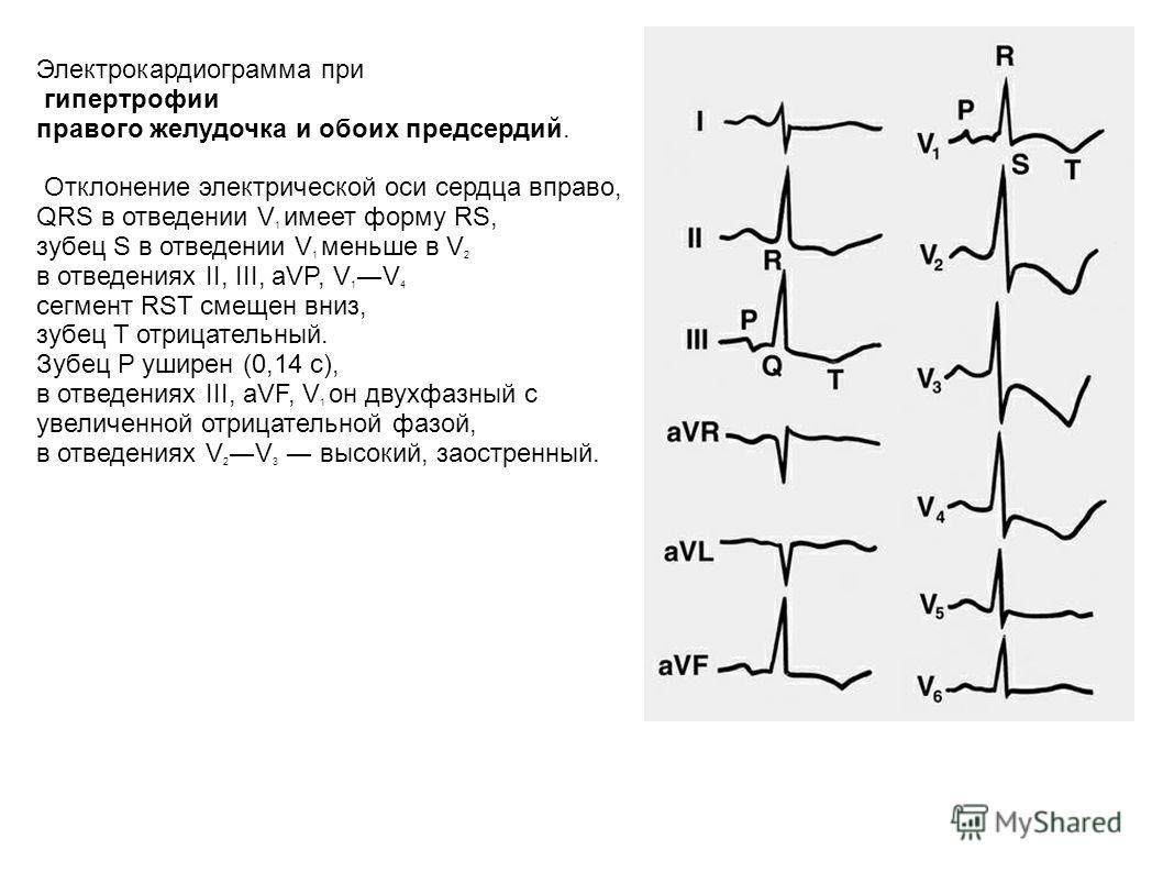 Электрокардиограмма при гипертрофии правого желудочка и обоих предсердий. Отклонение электрической оси сердца вправо, QRS в отведении V 1 имеет форму RS, зубец S в отведении V 1 меньше в V 2 в отведениях II, III, aVP, V 1 V 4 сегмент RST смещен вниз,