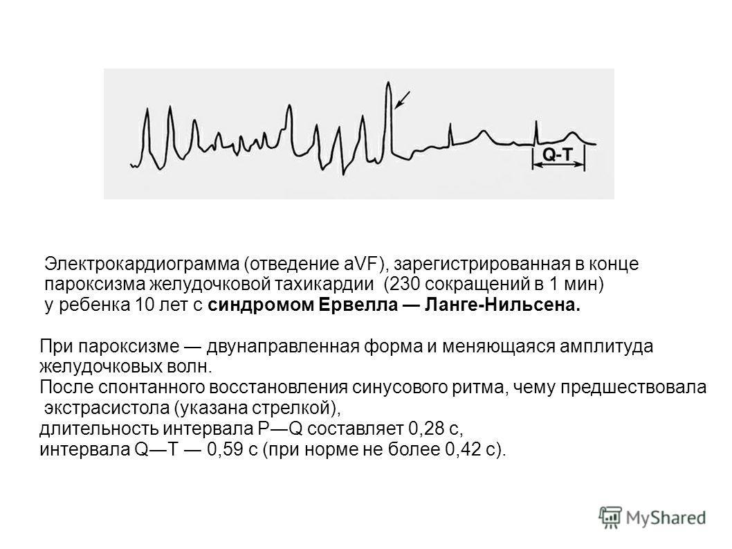 Электрокардиограмма (отведение aVF), зарегистрированная в конце пароксизма желудочковой тахикардии (230 сокращений в 1 мин) у ребенка 10 лет с синдромом Ервелла Ланге-Нильсена. При пароксизме двунаправленная форма и меняющаяся амплитуда желудочковых