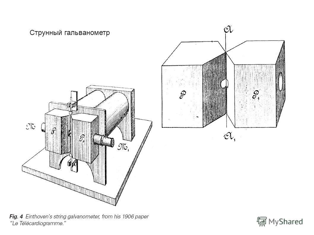 Струнный гальванометр