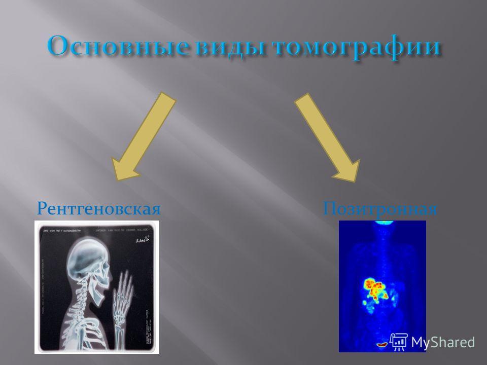 Рентгеновская Позитронная
