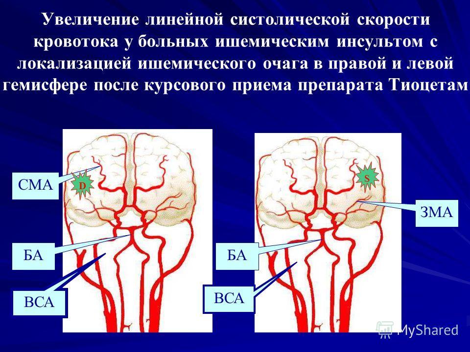 Увеличение линейной систолической скорости кровотока у больных ишемическим инсультом с локализацией ишемического очага в правой и левой гемисфере после курсового приема препарата Тиоцетам ВСА БА СМА ВСА БА ЗМА DS