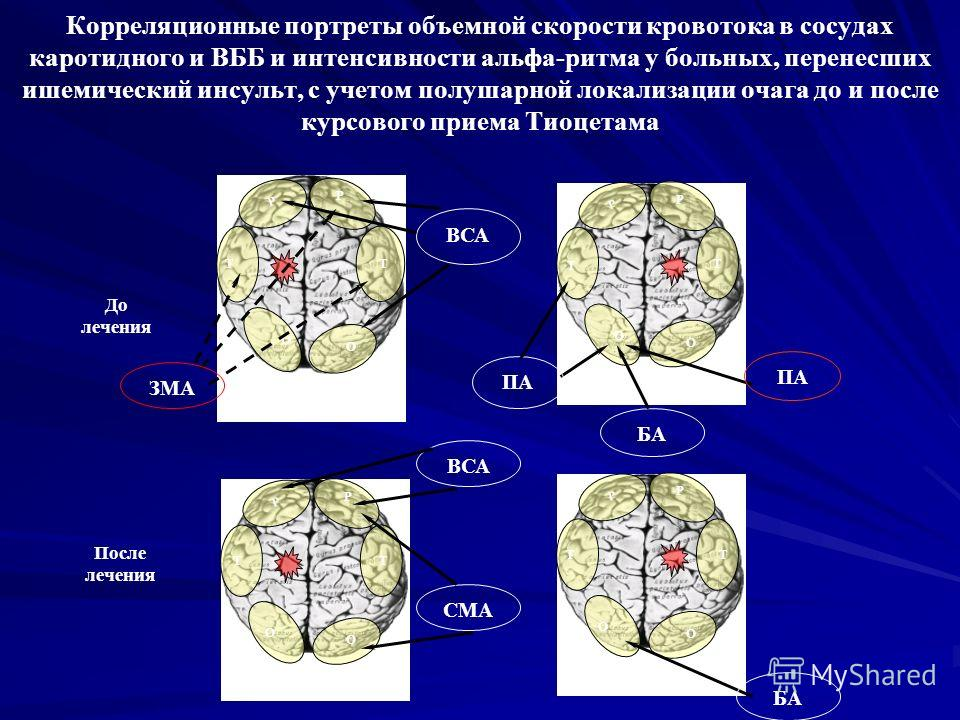 Корреляционные портреты объемной скорости кровотока в сосудах каротидного и ВББ и интенсивности альфа-ритма у больных, перенесших ишемический инсульт, с учетом полушарной локализации очага до и после курсового приема Тиоцетама Р Т О Т О Р ВСА ЗМА До