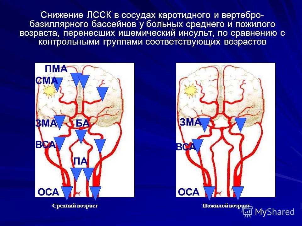 Снижение ЛССК в сосудах каротидного и вертебро- базиллярного бассейнов у больных среднего и пожилого возраста, перенесших ишемический инсульт, по сравнению с контрольными группами соответствующих возрастов Средний возраст Пожилой возраст ОСА ВСА ЗМА