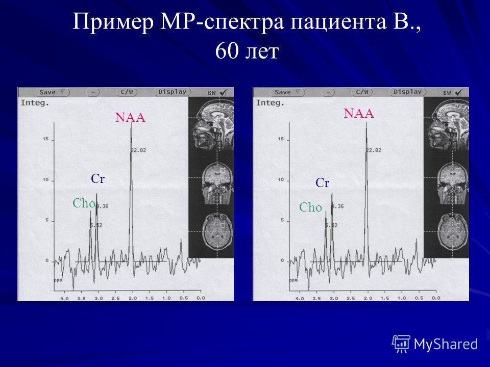 Пример МР-спектра пациента В., 60 лет NAA Cr Cho