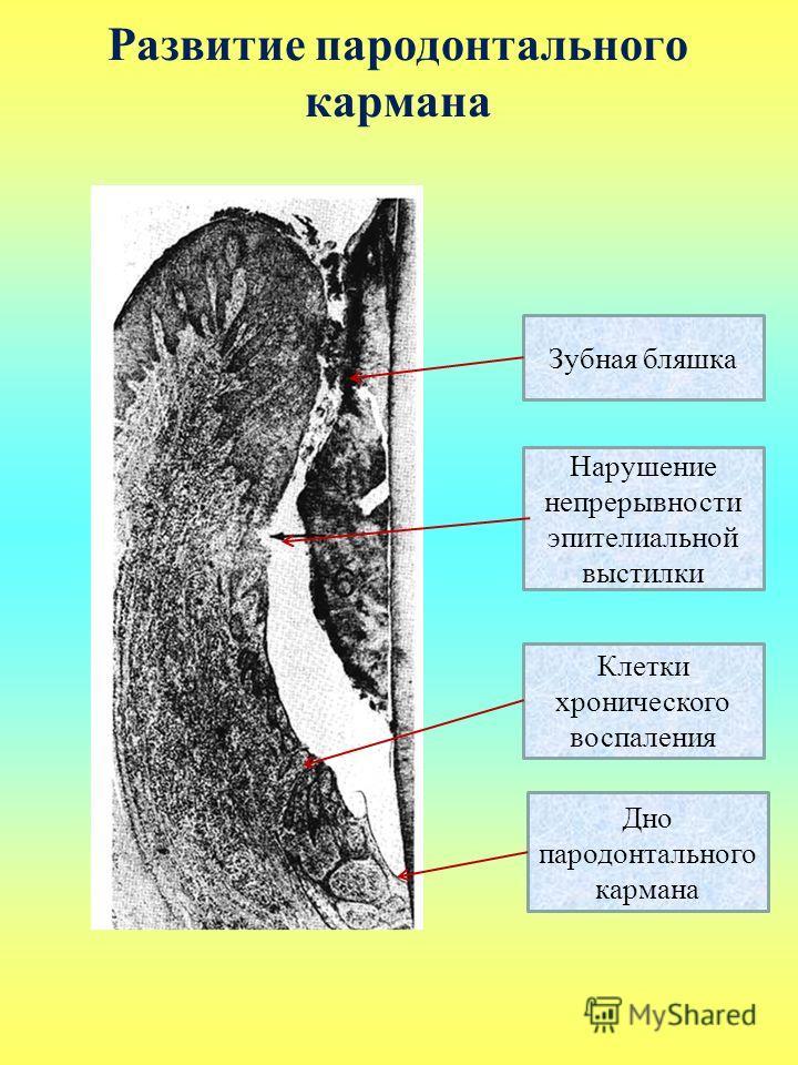 Развитие пародонтального кармана Зубная бляшка Дно пародонтального кармана Нарушение непрерывности эпителиальной выстилки Клетки хронического воспаления
