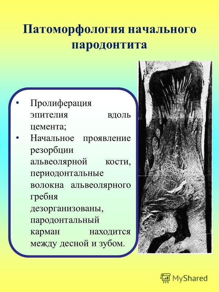 Патоморфология начального пародонтита Пролиферация эпителия вдоль цемента; Начальное проявление резорбции альвеолярной кости, периодонтальные волокна альвеолярного гребня дезорганизованы, пародонтальный карман находится между десной и зубом.