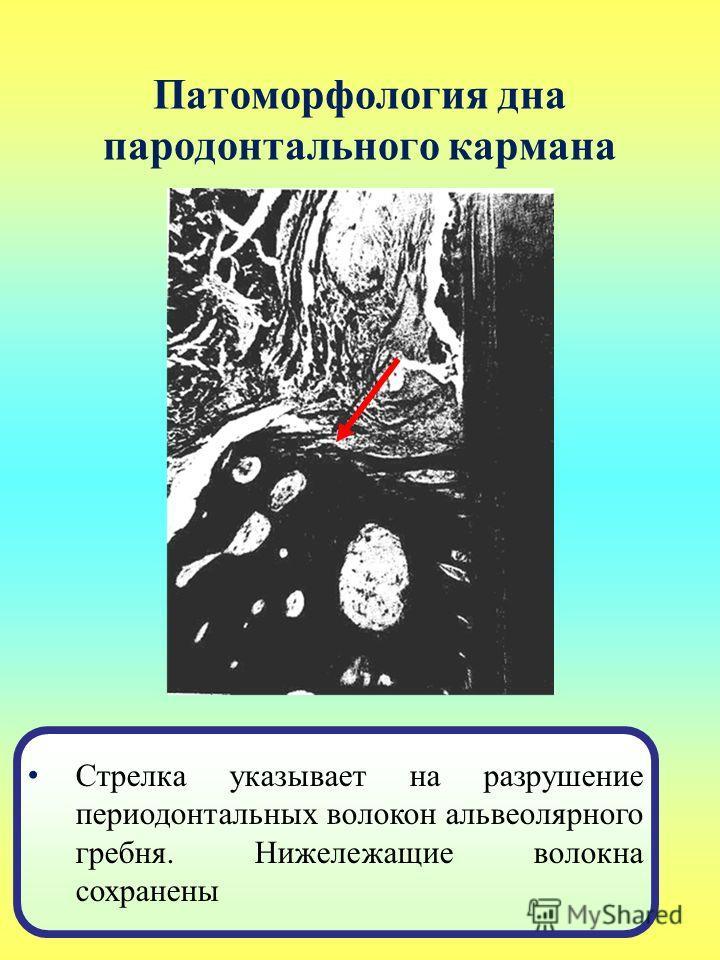 Патоморфология дна пародонтального кармана Стрелка указывает на разрушение периодонтальных волокон альвеолярного гребня. Нижележащие волокна сохранены
