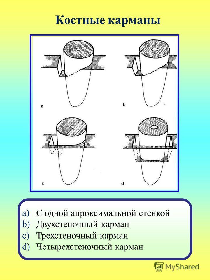 Костные карманы a)С одной апроксимальной стенкой b)Двухстеночный карман c)Трехстеночный карман d)Четырехстеночный карман