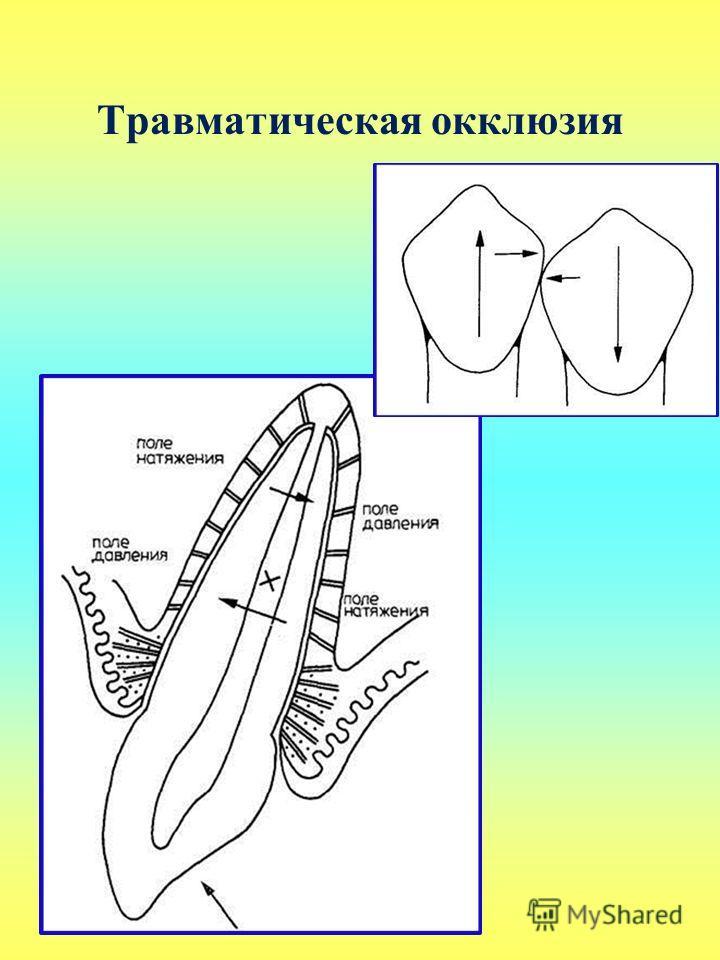 Травматическая окклюзия