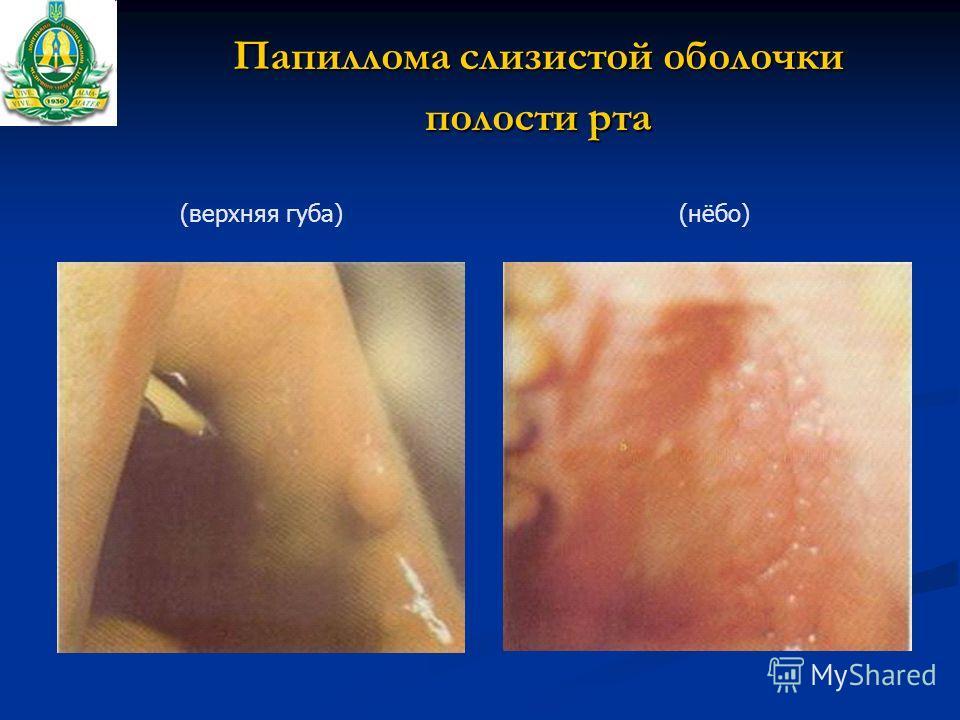 Папиллома слизистой оболочки полости рта (нёбо)(верхняя губа)