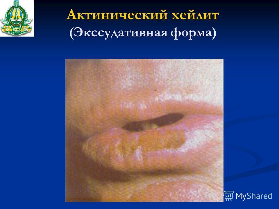 Актинический хейлит (Экссудативная форма)