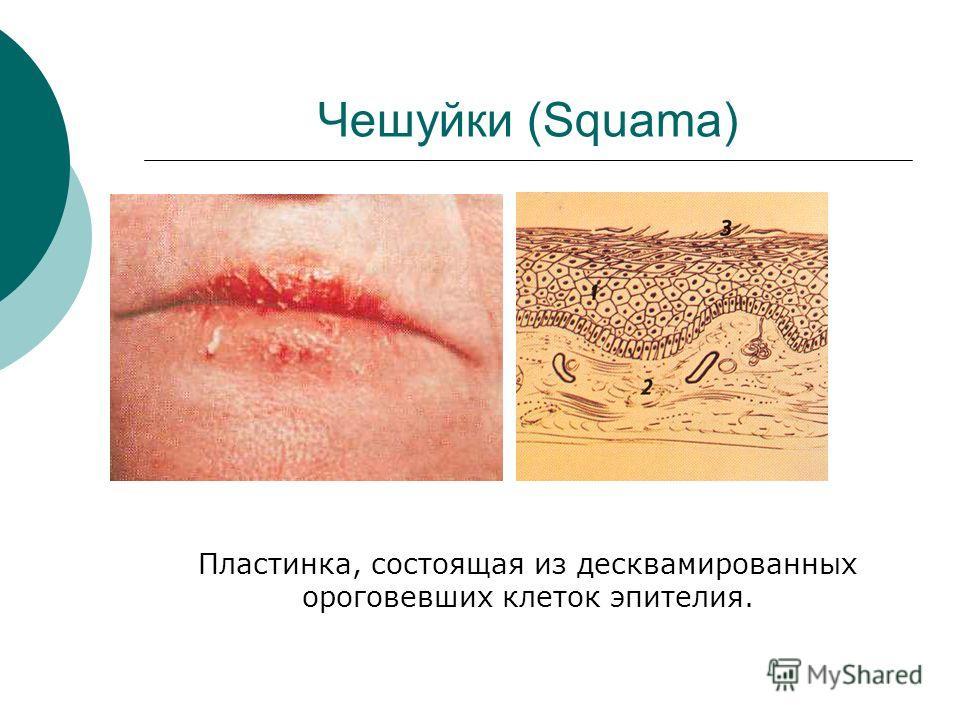 Чешуйки (Squama) Пластинка, состоящая из десквамированных ороговевших клеток эпителия.