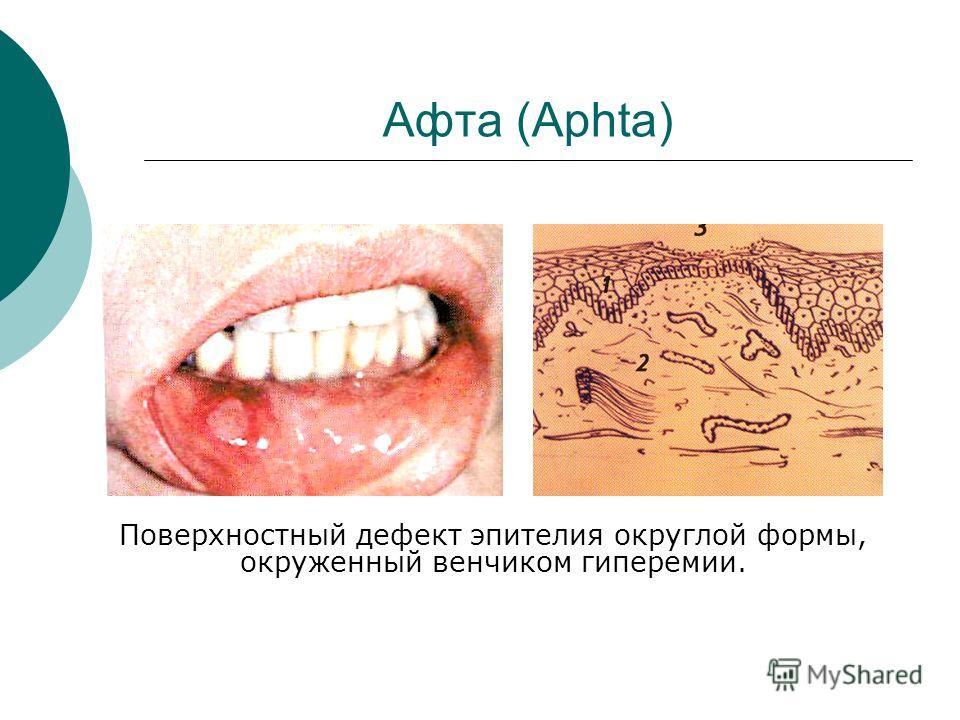 Афта (Aphta) Поверхностный дефект эпителия округлой формы, окруженный венчиком гиперемии.