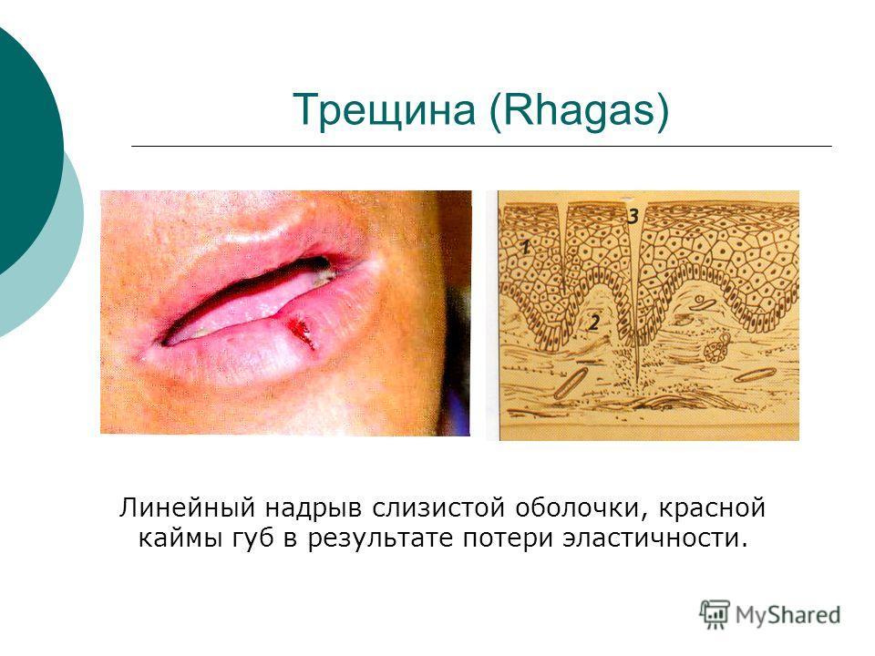 Трещина (Rhagas) Линейный надрыв слизистой оболочки, красной каймы губ в результате потери эластичности.