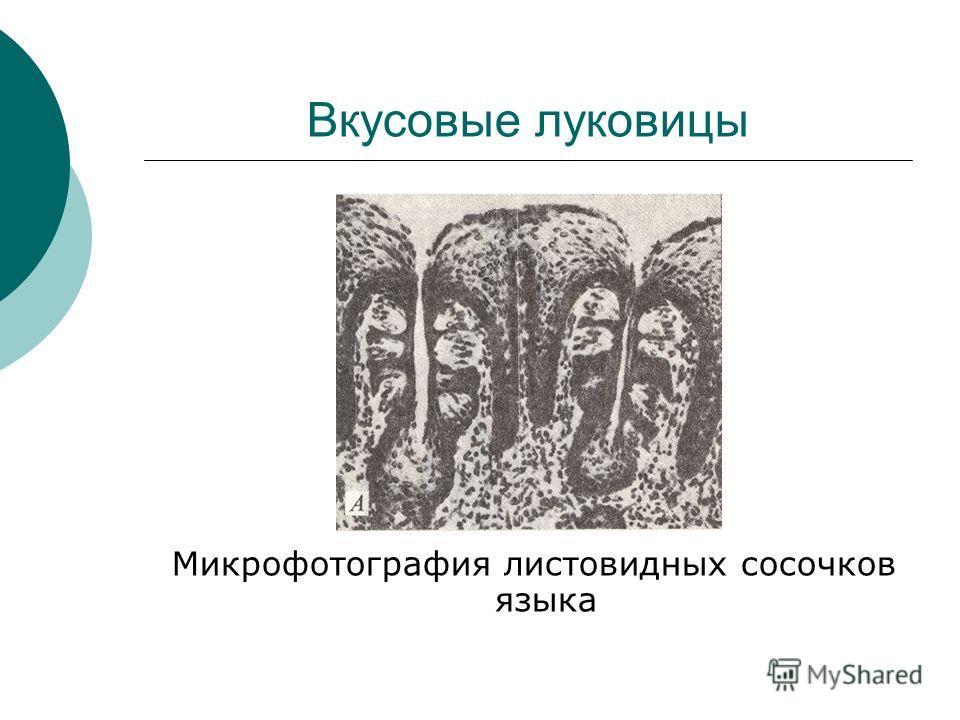 Вкусовые луковицы Микрофотография листовидных сосочков языка