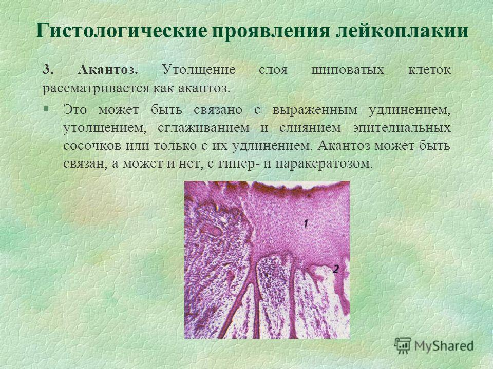3. Акантоз. Утолщение слоя шиповатых клеток рассматривается как акантоз. §Это может быть связано с выраженным удлинением, утолщением, сглаживанием и слиянием эпителиальных сосочков или только с их удлинением. Акантоз может быть связан, а может и нет,
